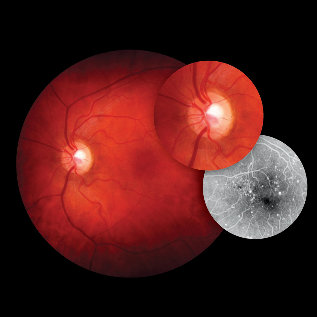 Visucam Fundus Imaging Medical Technology Zeiss International Upang Bulb Replacement 1 Infrared 2 Uv 3