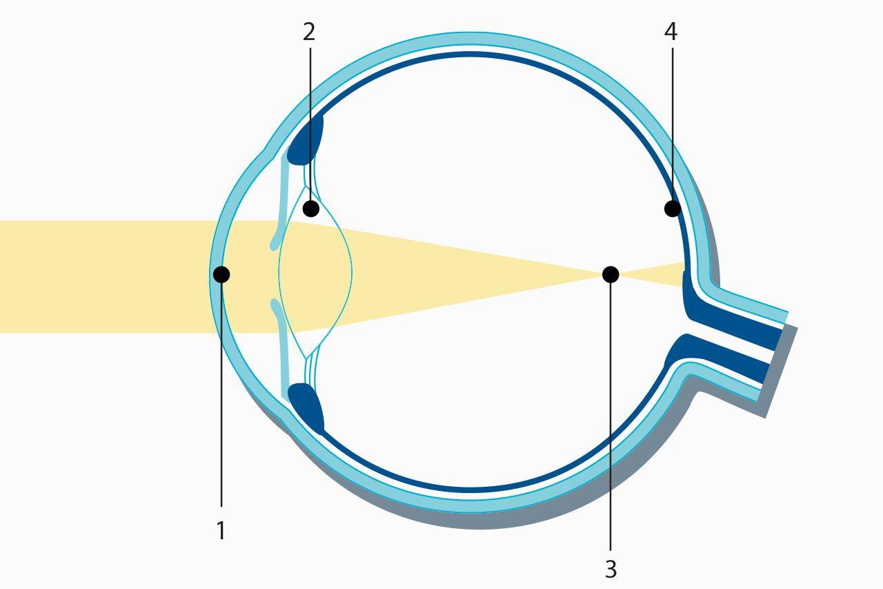 31f27206ec Nearsightedness (Myopia) - Laser Eye Surgery - Medical Technology │ ZEISS  International - Medical Technology │ ZEISS International