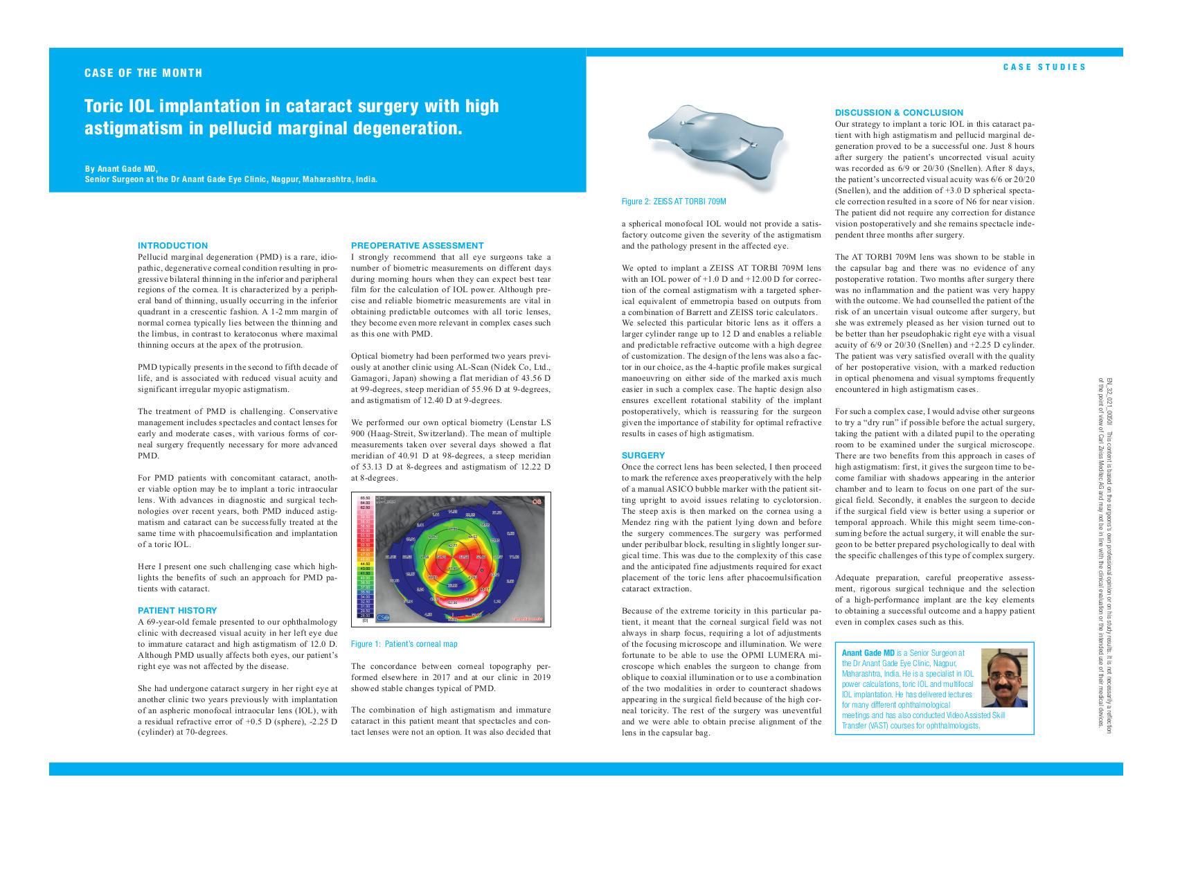 ZEISS Astigmatism Management - Medical Technology | ZEISS