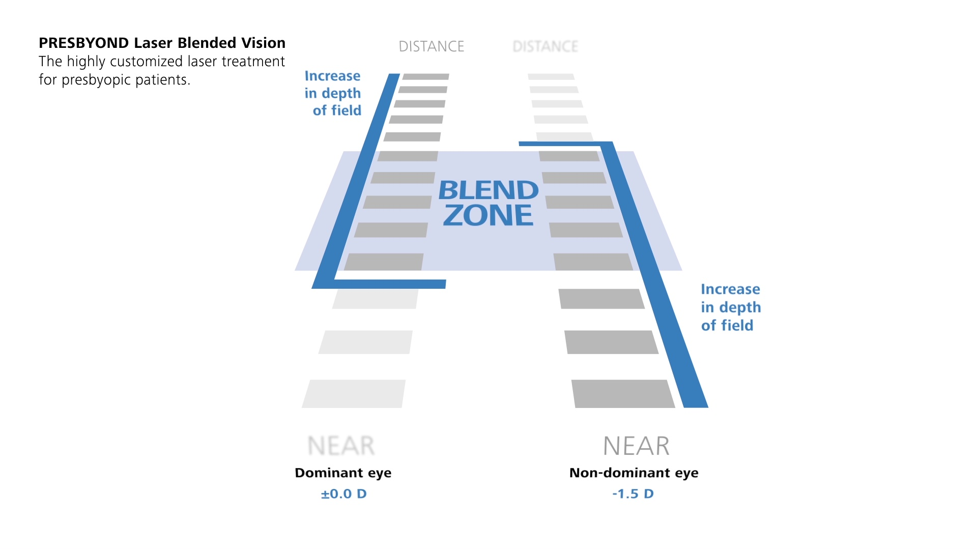 Discover the benefits of the unique, customized PRESBYOND Laser Blended  Vision