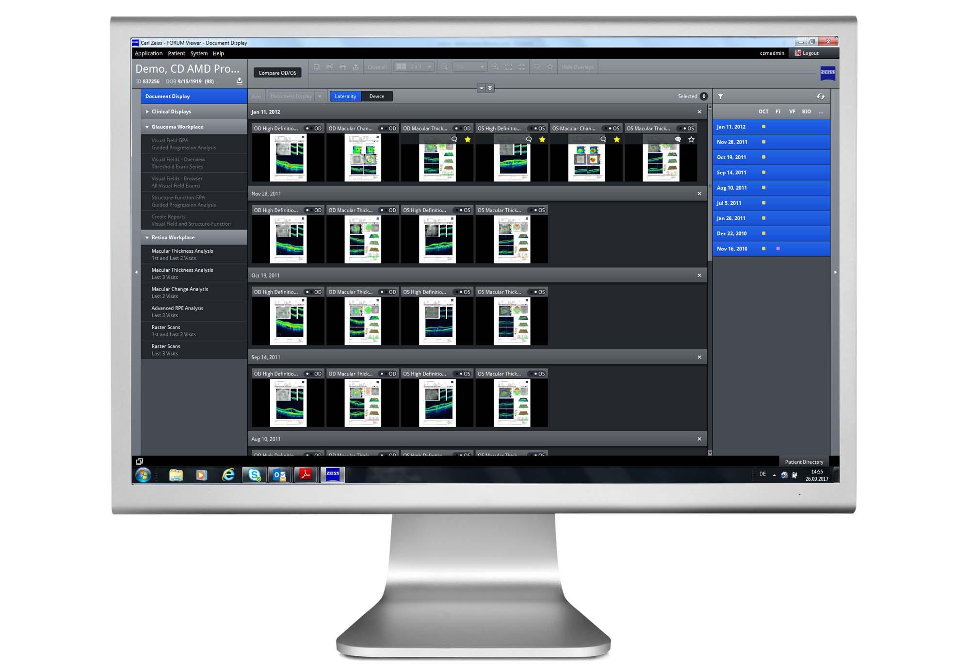 ZEISS FORUM Ophthalmology Software - Medical Technology | ZEISS