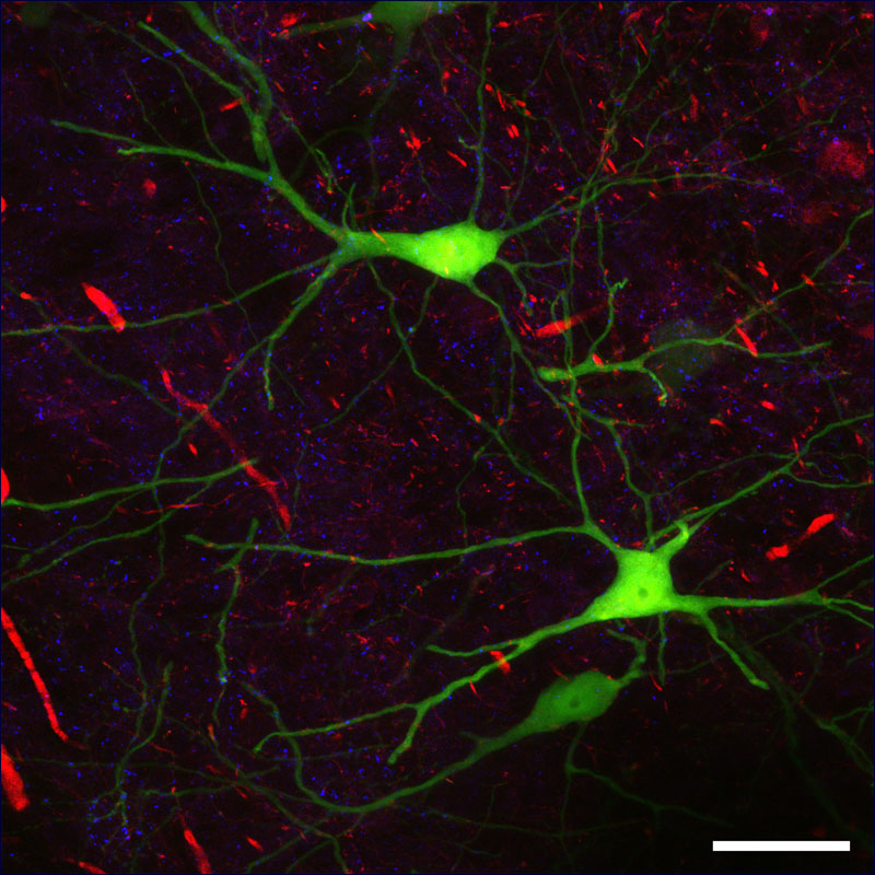 Mouse brain slice; EGFP-Thy1 (green): nerve cells (subset), Calretin-Cy3 (red): Calretinin-expressing neurons,  GAD65-Cy5 (blue): GABAergic synapses; scale bar 50µm;<br />Sample: courtesy of P. Janz, Neuropathology, University Freiburg, Germany