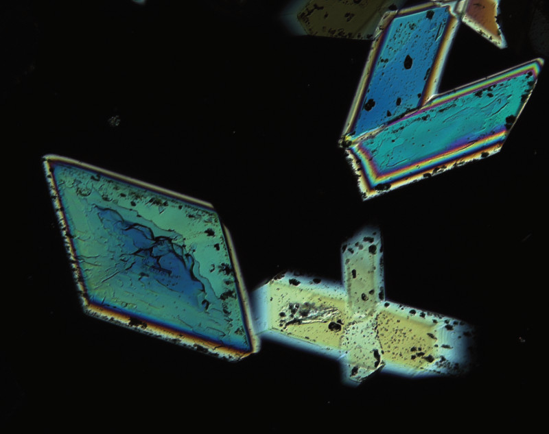 Axio Scope The All Round Microscope For Material Analysis