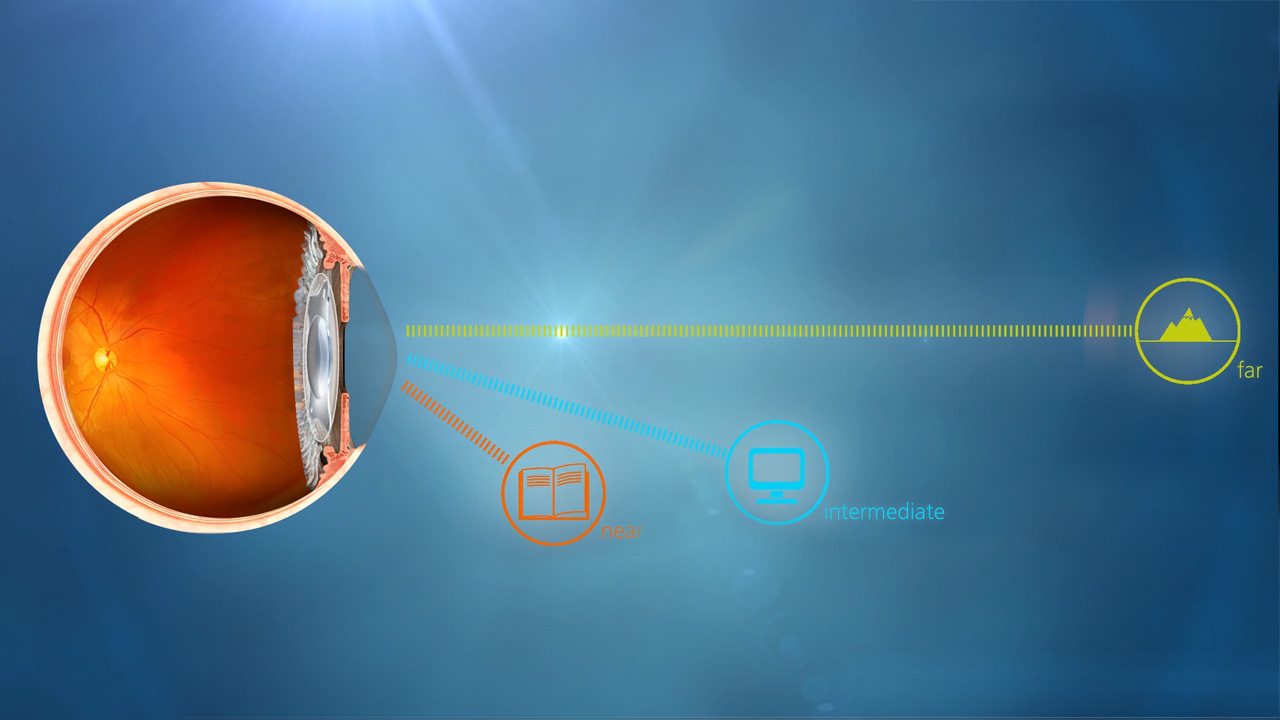 Cataract Surgery Procedures Risks And Cost