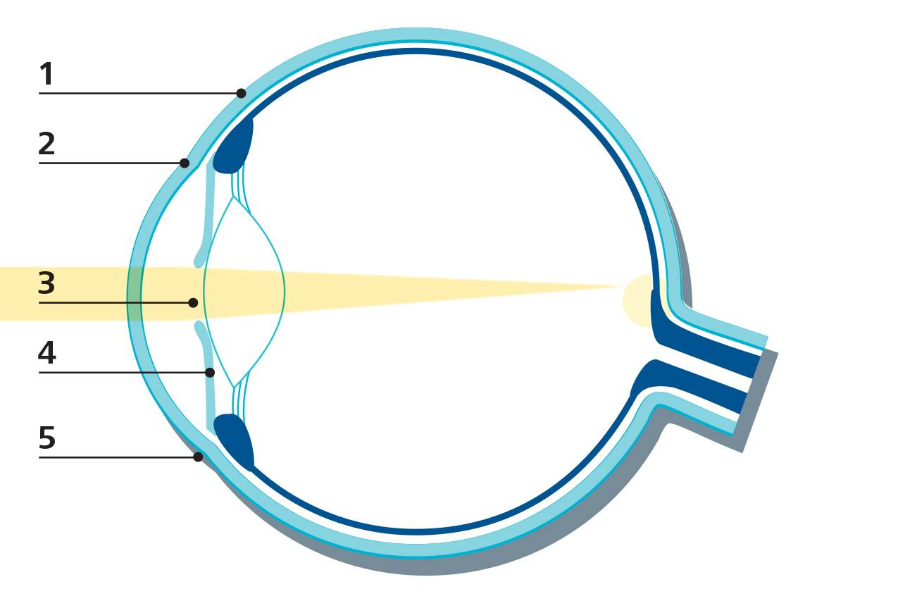 sclera: the sclera is the white, outer area that creates and supports the  structure of the eye  2  cornea: the cornea is the clear, front part of the  eye