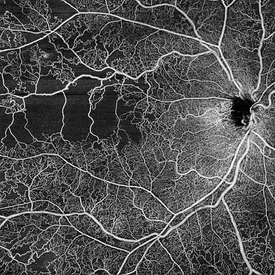 SS-OCT HD-Angiographie - Bild mit 12x12mm zeigt die Verzweigung einer retinalen Venenokklusion, aufgenommen mit 200 kHz. Dieser Einzelscan ermöglicht es dem Arzt, tiefer, weiter und in höherer Auflösung mehr Mikrogefäße zu erkennen. Mit freundlicher Genehmigung von Dr. Roger Goldberg.