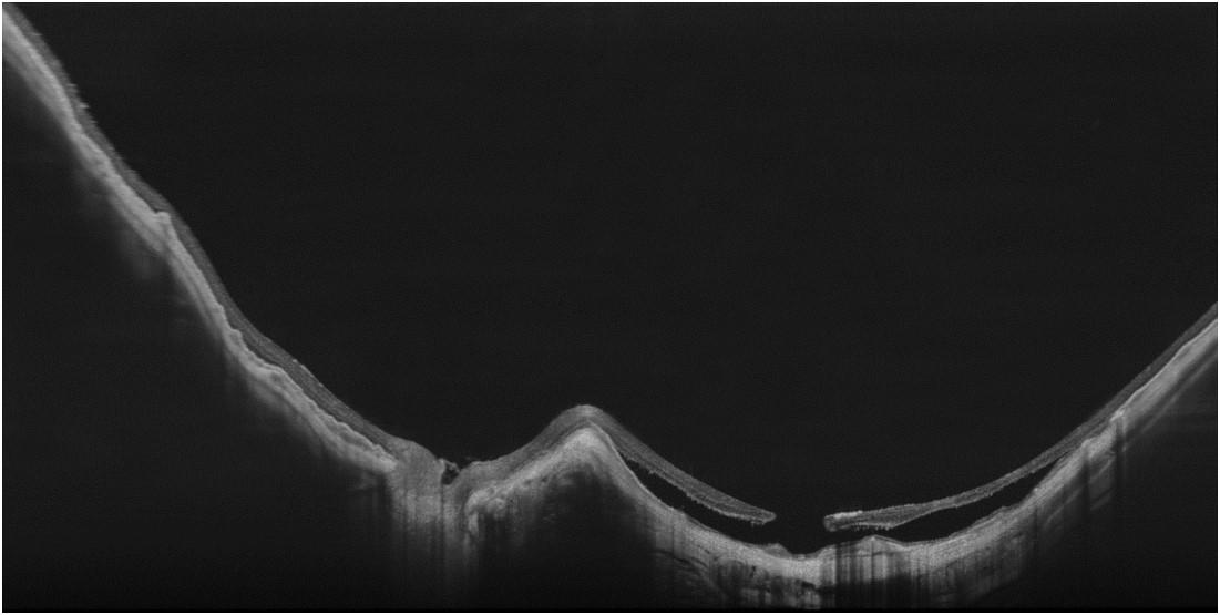 Ultra-HD-Spot eines myopischen Staphyloms mit einer B-Scan-Tiefe von 6 m, aufgenommen mit 200 kHz - vollständige Abbildung und Bewertung der stark gekrümmten Netzhaut wird damit ermöglicht. Mit freundlicher Genehmigung von Jean-Francois Korobelnik.