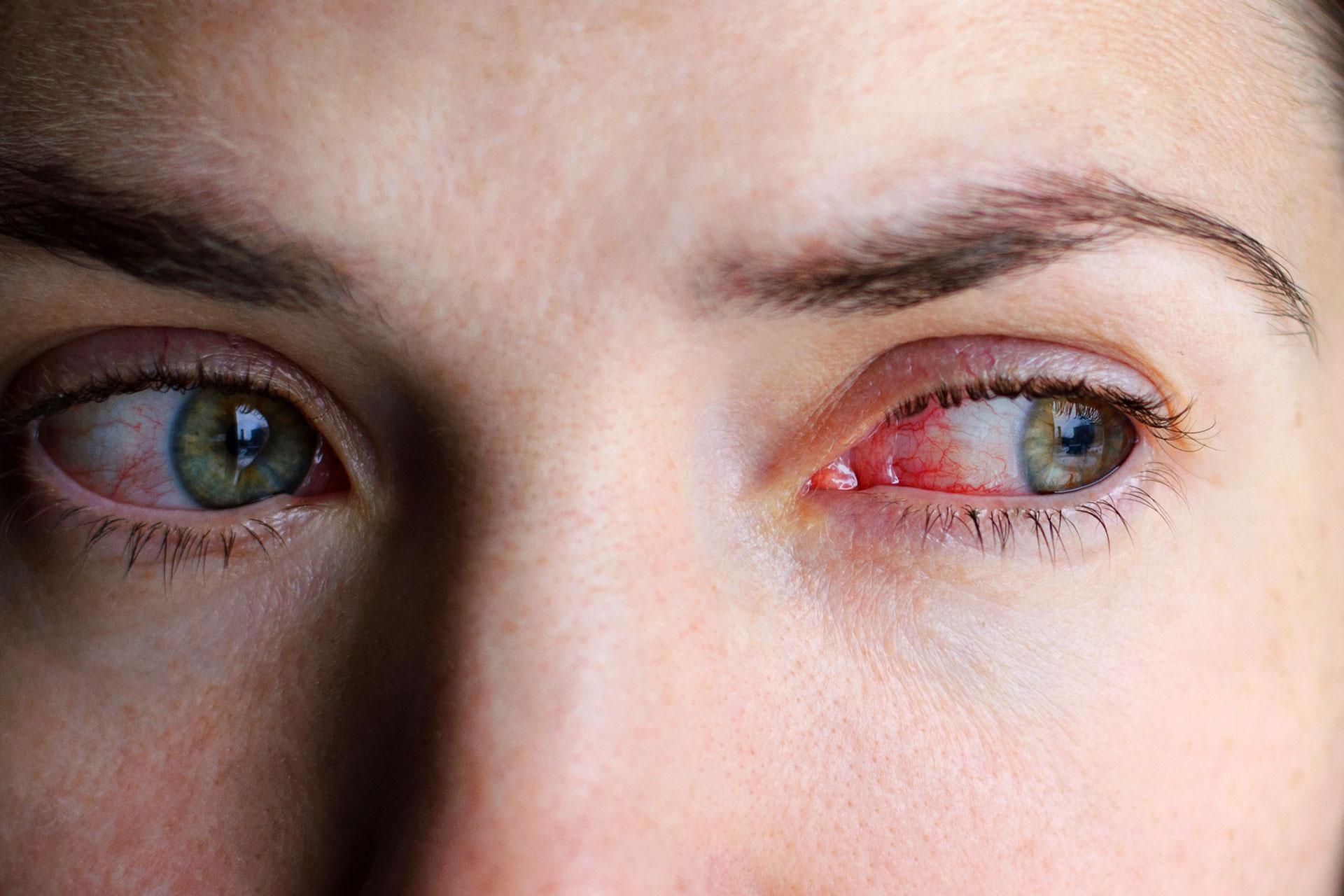 Swollen Eyes Dark Circles Red And Burning Eyes
