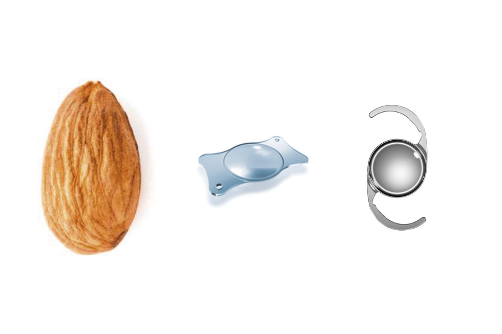 Actual IOL size compared to an almond