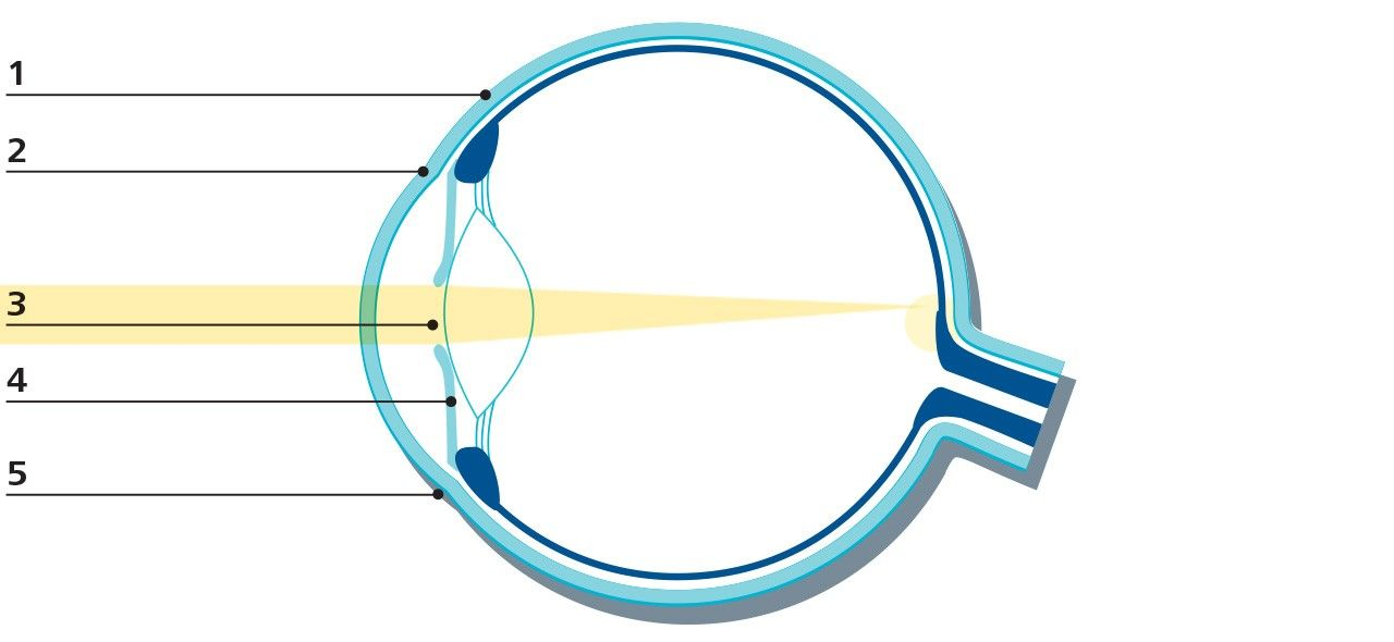 A graphic which shows the anatomy of the front of the eye
