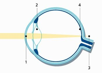 If diagnosed with presbyopia, light passes the cornea (1) and the lens (2), but the focal point (3) of incoming light is behind the retina (4).