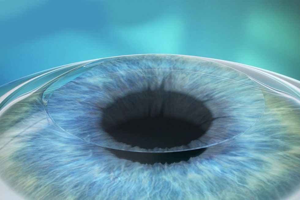 The flap in its original position