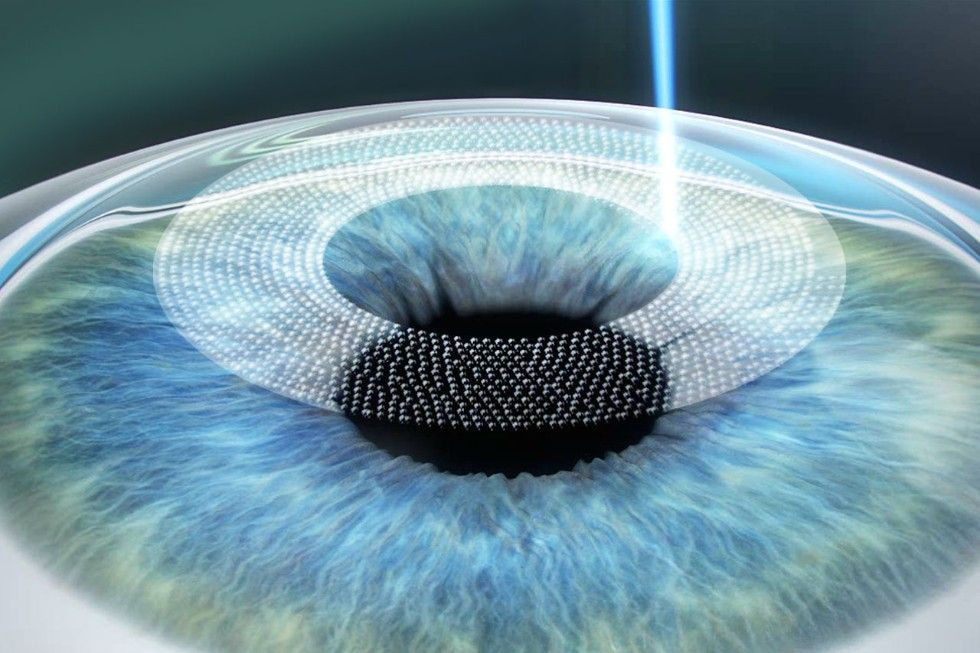 A femtosecond laser creates a thin flap