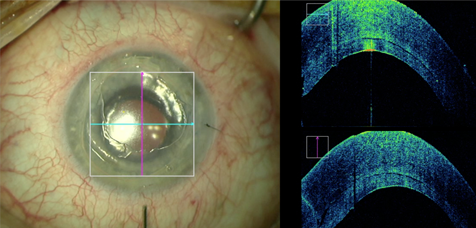 ZEISS RESCAN 700 in retina surgery