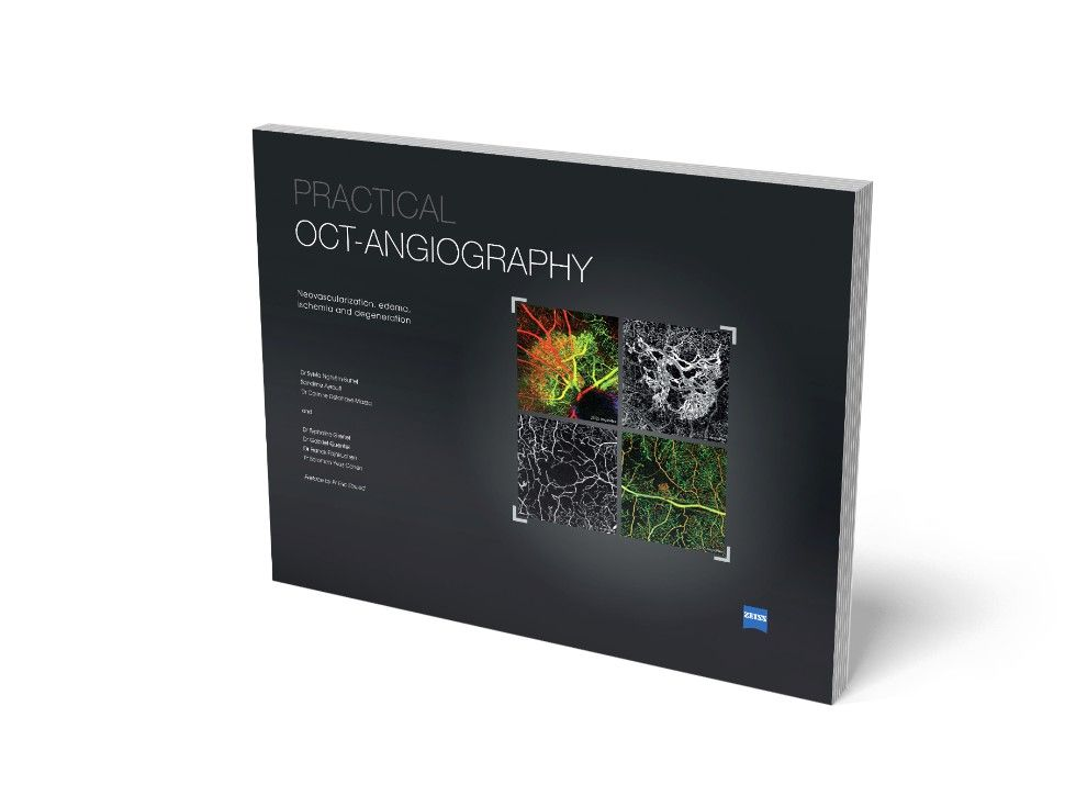 Practical OCT-Angiography Book Offer