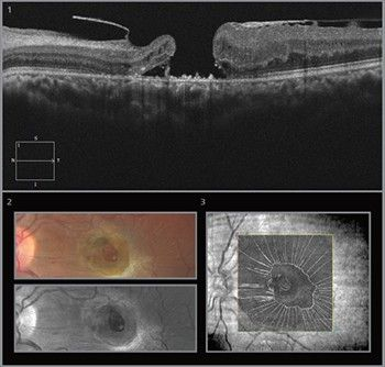 Featured Case by ZEISS – Traumatic Macular Hole