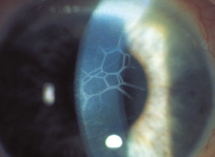Corneal structures in direct focal illumination
