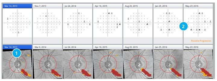 Glaucoma Workplace: Detecting change as early as possible