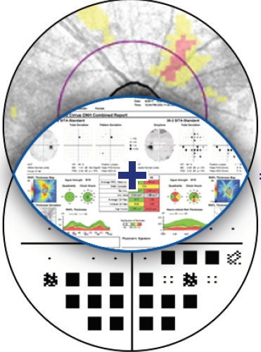 Glaucoma Workplace: Integrated Structure-Function Information