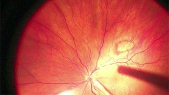 Viewing the retina with ZEISS RESIGHT non-contact fundus viewing system. & OPMI LUMERA 700 - Surgical Microscopes - Retina - Medical ... azcodes.com