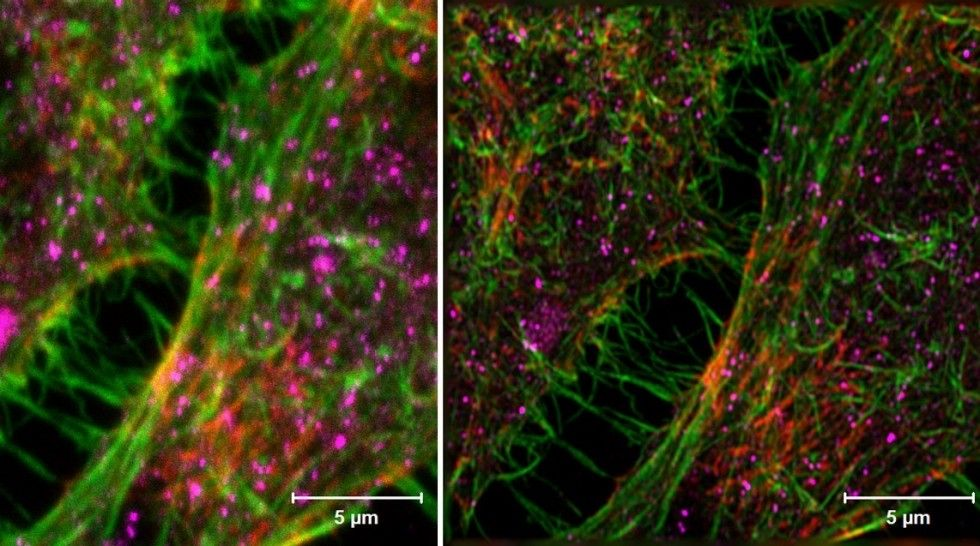Comparing the confocal (left) with the Airyscan (right) image clearly shows improved resolution and signal-to-noise ratio.  HeLa cells. Sample: Courtesy of S. Traikov, BIOTEC, TU Dresden, German